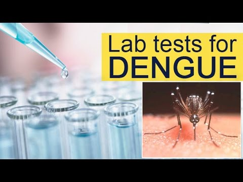 What tests should you get done for dengue || Experts Speak