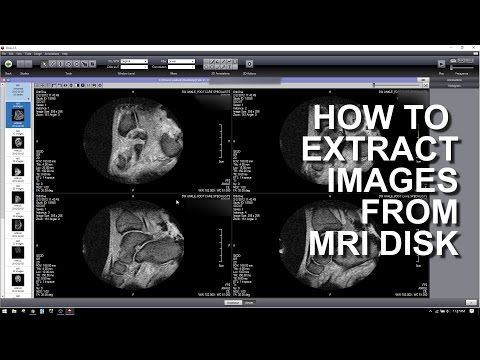HOW TO EXTRACT IMAGES FROM A MRI DICOM DISK