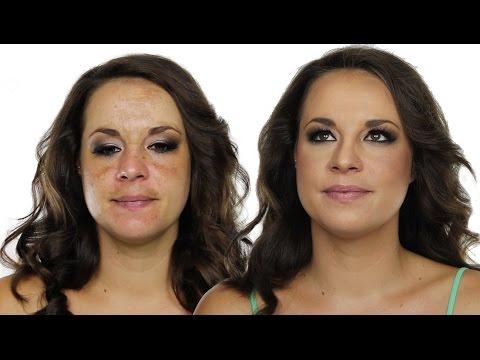 How To Cover Hyperpigmentation / Skin Pigmentation Using MakeUp | Shonagh Scott | ShowMe MakeUp