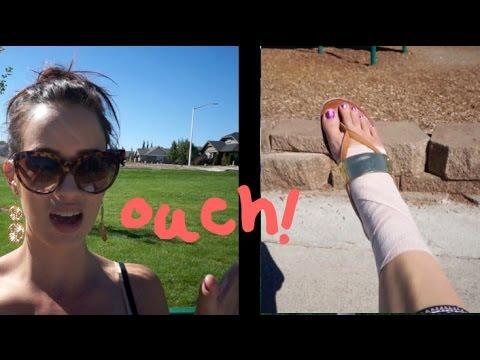 HURT FOOT!! - 8/28 - 8/31/14