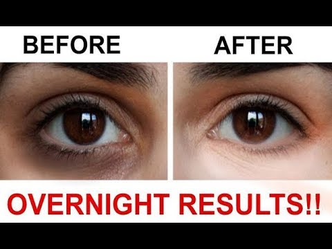 How to Remove Dark Circles Naturally in 3 Days /100% Results