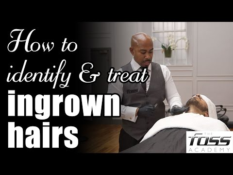 How to identify & treat ingrown hairs (The Mayfair Barber)