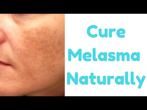 How to Get Rid of Melasma || Top Natural Remedies to Cure Melasma