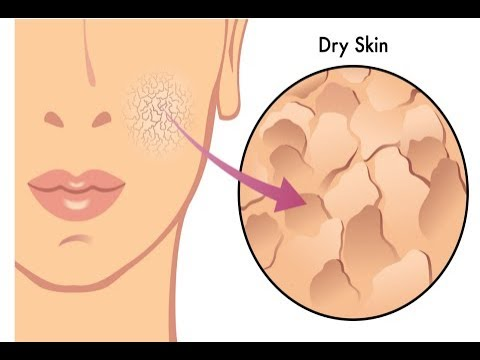 5 Signs You're suffering from  Dehydration - Dehydrated Skin Care