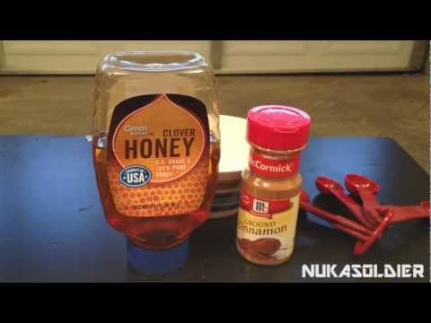 How To Cure Toothaches When SHTF - Cinnamon, A Preppers Spice