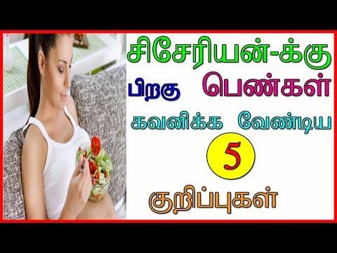 சிசேரியன்-க்கு  பிறகு பெண்கள் கவனிக்க 5 குறிப்புகள்    After Delivery   Cesarean   Tamil Health Tips