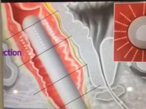 vaginal tightening equipment operating principle