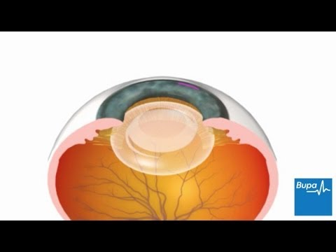 How cataract surgery is carried out
