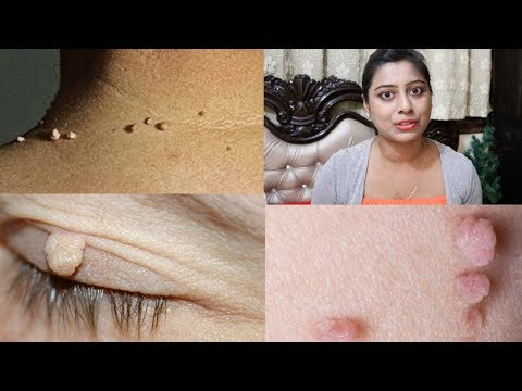 Amazing Trick To Remove Skin Tags || Easy Home Remedy In Hindi