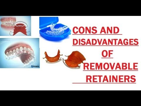 {#171}: Cons Of Removable Retainer
