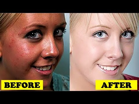 How to Get Fair & Glowing Skin in Summer at Home | Skin Whitening Treatment