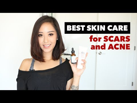 TOP 10 | Best of Acne and Acne Scarring Skin Care