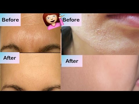 How To Get Rid From Oily & Dry Skin INSTANTLY! | HOME REMEDIES