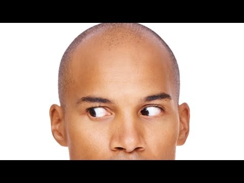 What Causes Hair Loss? | Thinning Hair