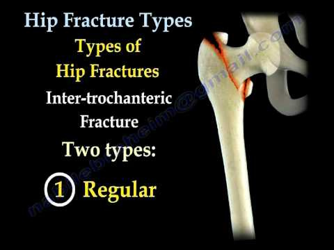 Hip Fractures, Types  and fixation - Everything You Need To Know - Dr. Nabil Ebraheim