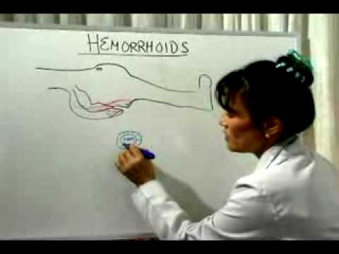 Hemorrhoid Cure: What Causes Hemorrhoids