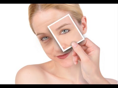 How to Reduce Puffy Eyes