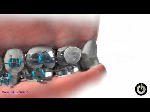How to to Prevent Gum Soreness with Wax on Your Dental Braces  - Scarborough, ON