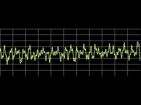 Gynecomastia - Rife Frequencies