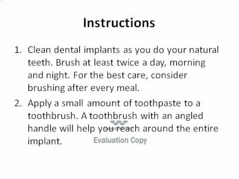 How to Clean Dental Implants