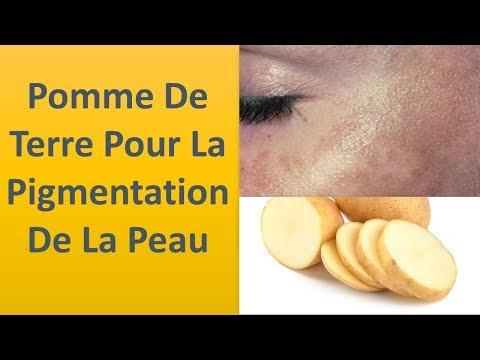 Pour la pigmentation de la peau de la pomme de terre