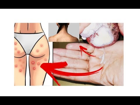 Remove Acne ,Pimples on Buttocks, Inner Thighs, Back& Face.in Urdu,Hindi &English