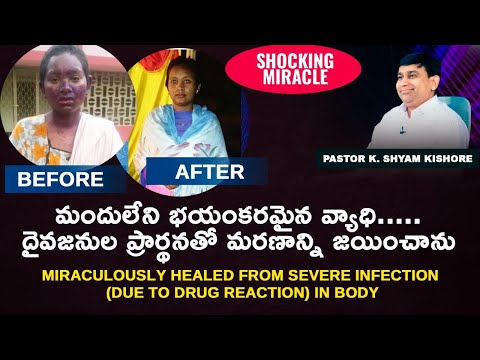 Miraculously healed from severe infection (Due to drug reaction) in body