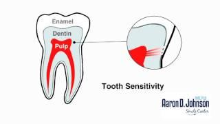Why Do My Teeth Hurt?