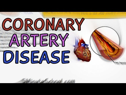 CORONARY ARTERY DISEASE EXPLAINED IN 3 MINUTES | CARDIAC CIRCULATION | CAUSES | SYMPTOMS | CAD