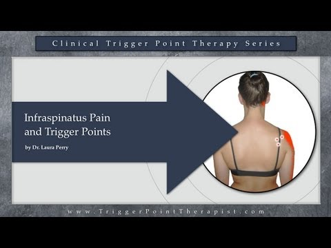 Infraspinatus Pain and Trigger Points