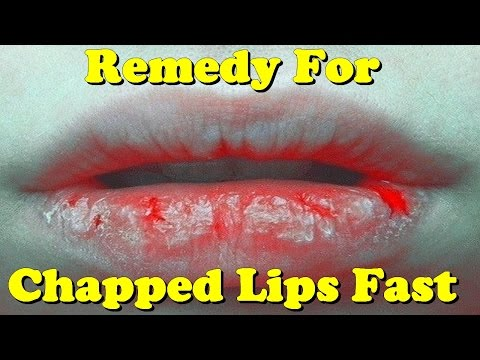 remedy for chapped lips fast