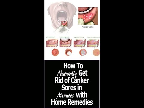 How to get rid of canker sores naturally in minutes