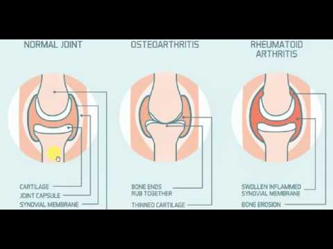 Medicine , RHEUMATOLOGY , 2 , Rheumatoid Arthritis