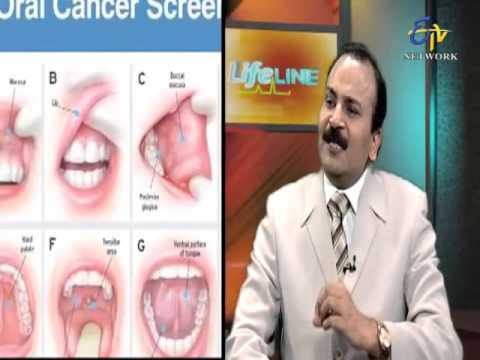 Life Line-Oral Cancer-On 31st Jan 2016