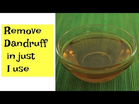 How To Get Rid Of Dandruff In Just 1 Wash  - Easy Remedy