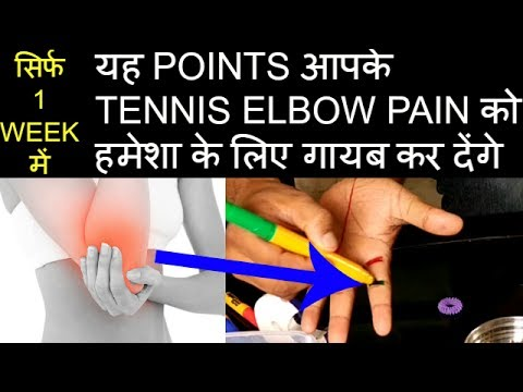 ACUPRESSURE POINTS For TENNIS ELBOW/SUJOK THERAPY For Elbow Pain/Tennis Elbow Treatment In Hindi