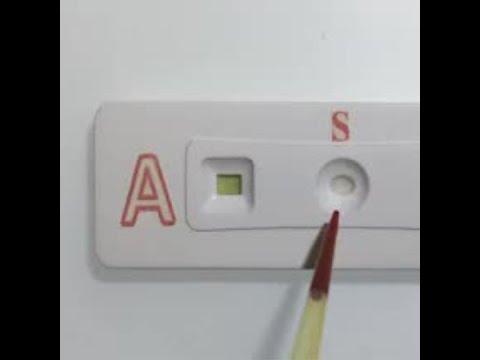 Paper strip test determines blood type