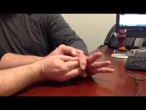 Finger Fracture Assessment Testing