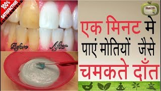 एक मिनट में पायें मोतियों जैसे चमकते दांत|| Best Remedies To Get Whiten Teeth ||