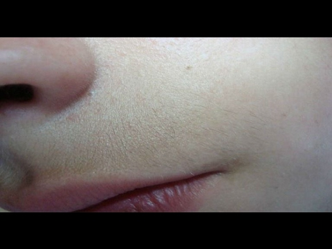 Remove Upper Lip Hair Forever with Just Two Ingredients