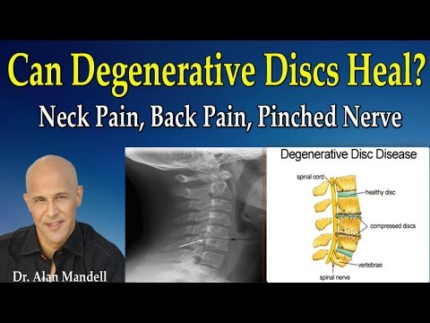 Can Degenerative Discs Heal Normal Again?  (Neck Pain, Back Pain, Pinched Nerve) - Dr Mandell