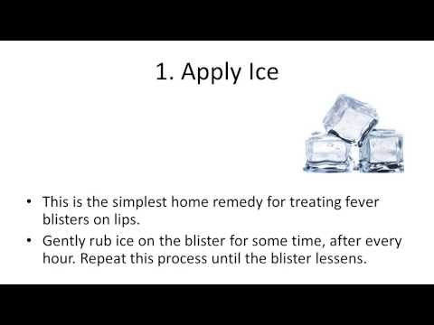 Natural Home Remedies for Fever Blisters | how to get rid of a fever blister overnight