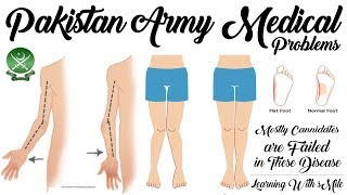 Top Medical Issues/Problems for Joining Pakistan Army of New Candidate's - Pak Army Medical Issues