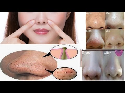 How to Get Rid of Blackheads at Home in 7 days Romove Blackheads & Whiteheads