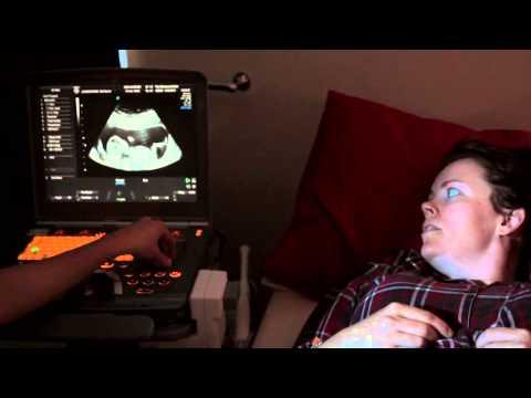 Nuchal Translucency Scan - First Trimester