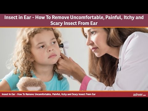Insect in Ear - How To Remove Uncomfortable, Painful, Itchy and Scary Insect From Ear