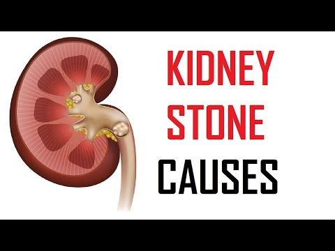 6 Major Causes Of Kidney Stones