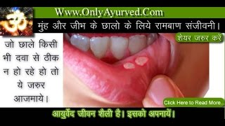 Mouth And Tongue Ulcers Treatment Only Ayurved