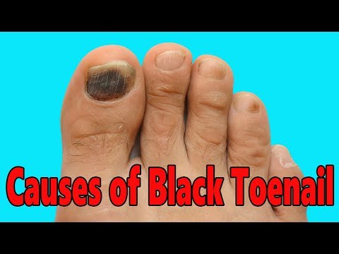 CAUSES OF BLACK TOENAIL!! HOW TO GET RID OF A BLACK TOENAIL!! CURE OF BLACK TOENAIL!! FOOTLOOSE