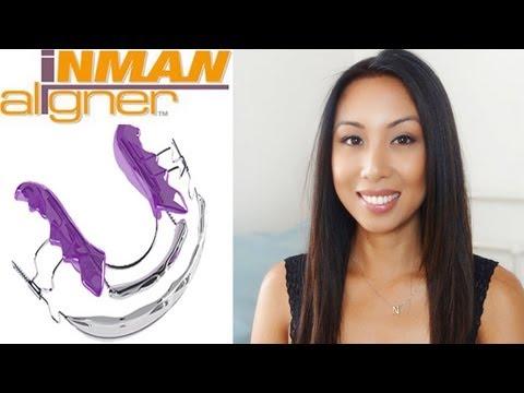 Successful teeth straightening experience | Inman aligner